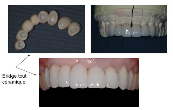 Dentiste Bridge Dentaire A Paris Cabinet Dentaire Dr Denis Cattan