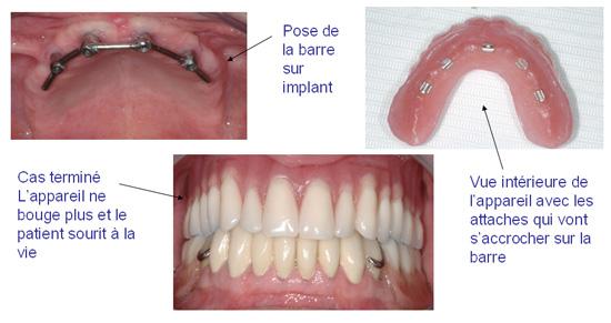 Dr Denis Cattan Dentiste Paris 14 Cabinet Dentaires Paris 14 Eme