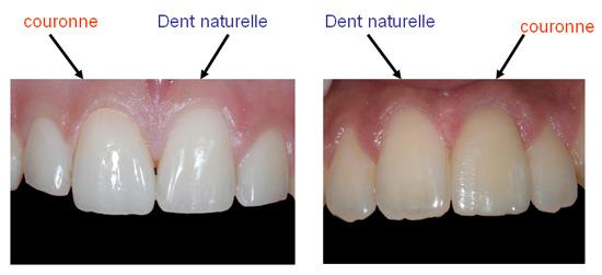 Protheses Dentaires A Paris 75014 Cabinet Dentaire Dr Denis Cattan